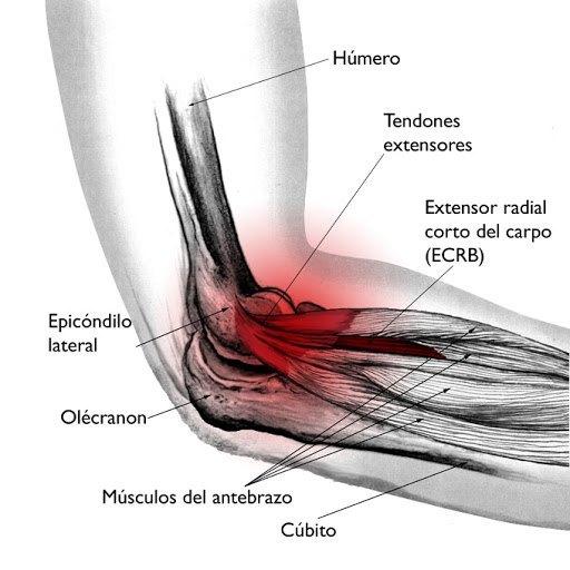 Cincha para epicondilitis lateral (codo de tenista) y epicondilitis medial (codo del golfista).